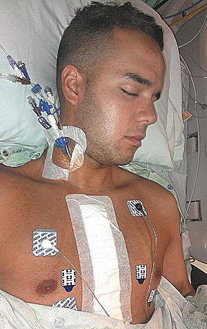 Ricky Santiago Fla Atl Heart Surgery